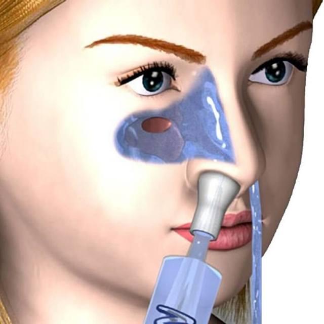 Чем и как промыть и полоскать нос при насморке в домашних условиях