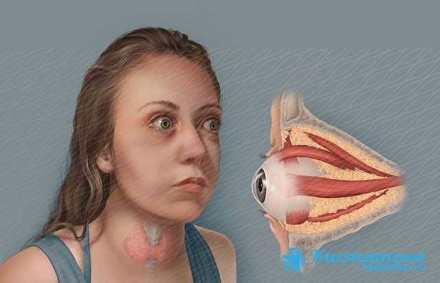 Что такое киста в носовой пазухе и чем опасно ее появление в носу