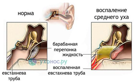 Стучит в ухе – причины и лечение стука в правом и левом ухе