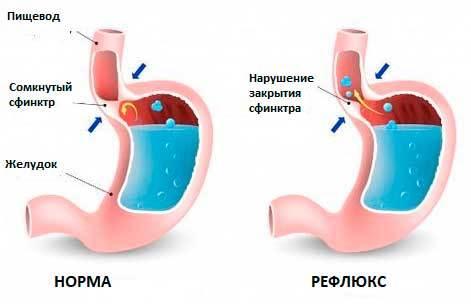 Постоянно текут сопли в горле по задней стенке – причины слизи в носоглотке