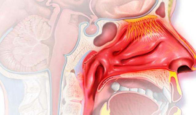 Лечение ринофарингита и назофрангита у взрослых – что делать при заднем рините