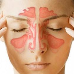 Кровь из носа при гайморите в соплях - причины и лечение