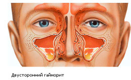 Признаки и симптомы гайморита у взрослых - как его определить и распознать