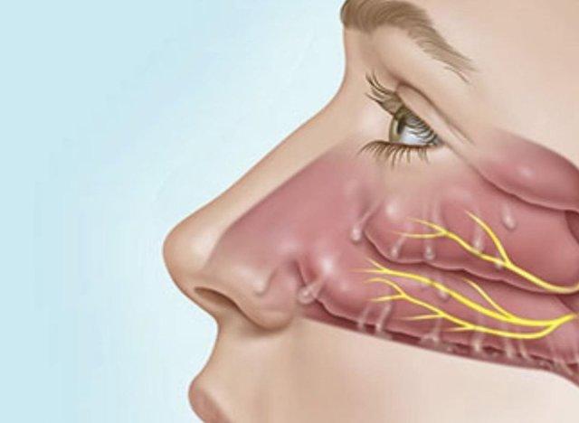 Почему из носа течет вода – причины появления прозрачной жидкости