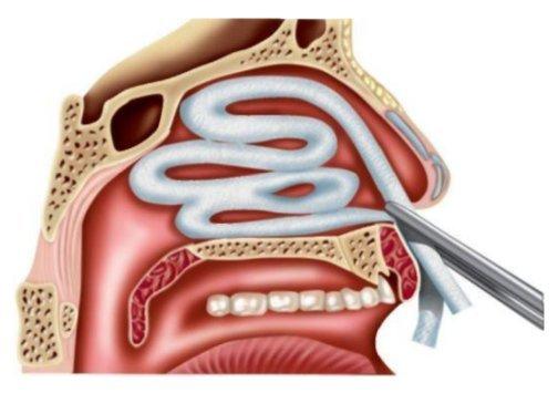 Передняя и задняя тампонада носа – как сделать и использовать турунды и тампоны