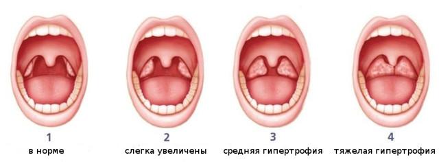 Аденоиды 1, 2 и 3 степени – отличия и лечение без операции