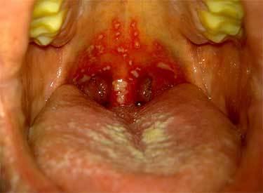 Как и чем лечить герпес в горле у взрослого и что делать