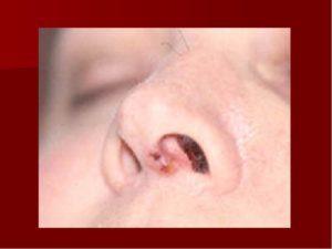 Трещинки и ранки в носу не заживают