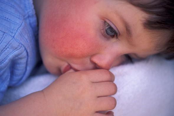 Красное горло и температура у ребенка - почему болит и чем лечить