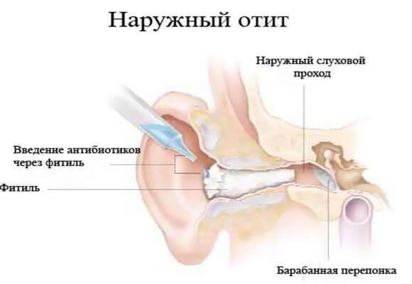 Виды отита уха у взрослых и детей и их классификация