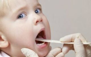 Можно ли вылечить ангину у ребенка без антибиотиков и как это сделать