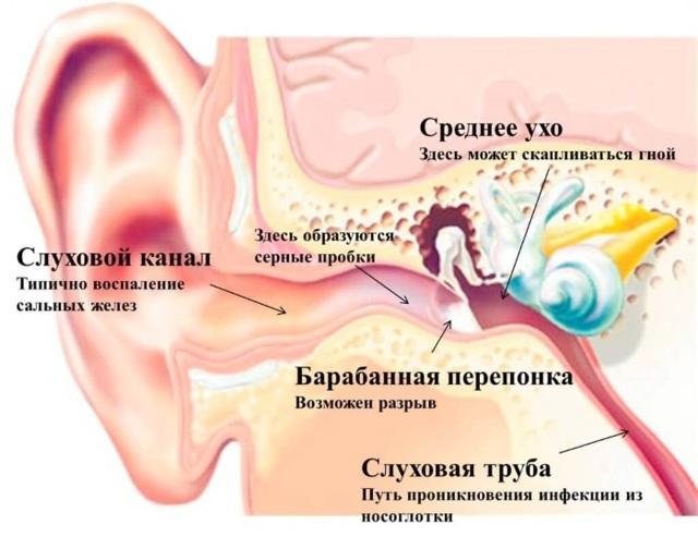 Капли от ушных пробок – что закапать в ухо для очистки серы