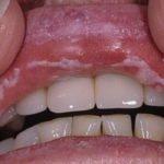 Грибок в горле у ребенка – симптомы и лечение фарингомикоза у детей