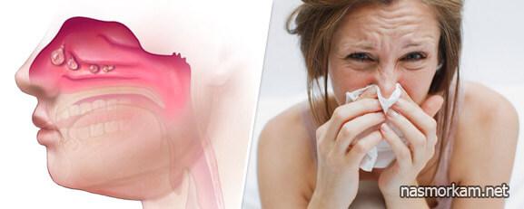 Перекись водорода в нос при насморке взрослым – методы лечения