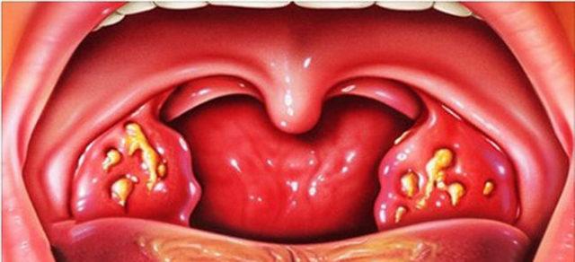 Как лечить гнойную ангину у взрослых – что делать и как быстро вылечить
