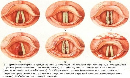 Туберкулез гортани – симптомы и лечение
