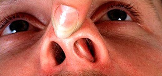 Болячка в носу долго не проходит и не заживает – что делать и чем лечить