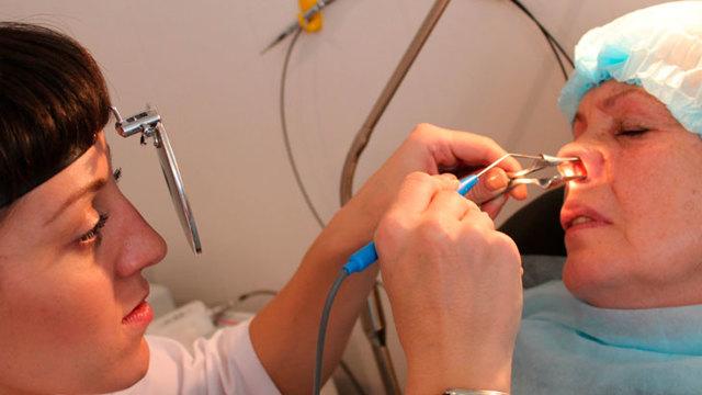 Лечение гайморита народными средствами - самые эффективные способы и особенности их применения