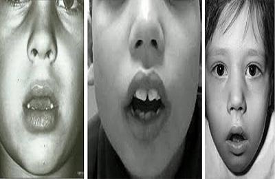 Причины аденоидов у детей - от чего они появляются и откуда берутся