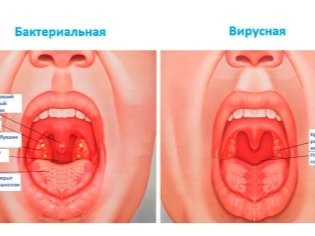 Симптомы воспаления горла – как определить красное оно или нет
