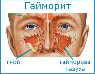 Заложен нос и болит голова, температуры нет – чем лечить и причины