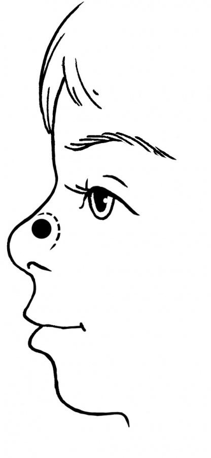 Е.О. Комаровский – кровь из носа у ребенка: причины и лечение