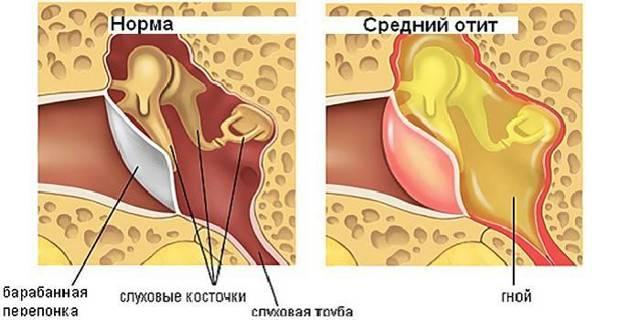 Что делать, если у ребенка болит ухо – первая помощь от боли детям
