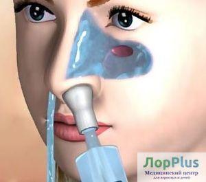 Промывание носа - все о проведении процедуры