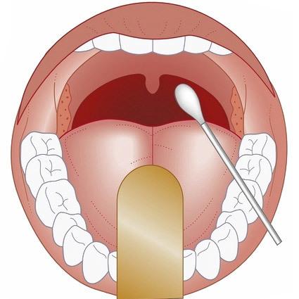 Мазок из зева горла на микрофлору и инфекции - как называется посев и расшифровка