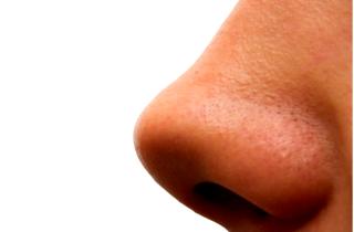 cиняк на носу – как избавиться и убрать сливу быстро