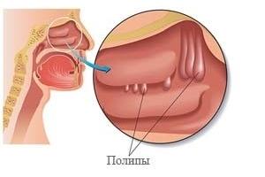 Лечение полипов в носу – как их убрать и избавиться навсегда