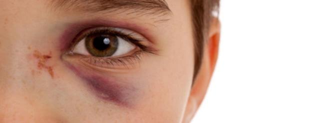 Сгустки крови и кровяные выделения из носа – причины и лечение