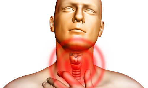 Компресс при ангине на горло – как правильно можно делать