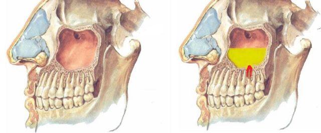 Виды гайморита – какие бывают разновидности и их особенности