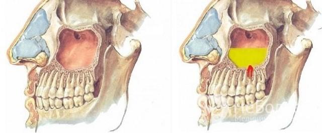 Прокол носа при гайморите - как проводится пункция гайморовой пазухи