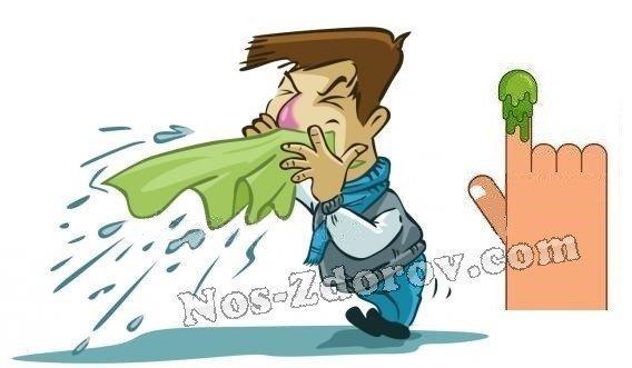 Густые зеленые сопли у взрослого – что означает этот насморк