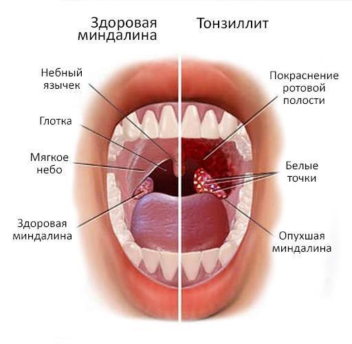 Красное горло у ребенка – причины воспаления