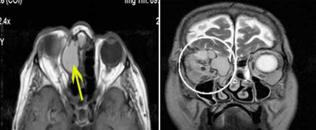 Лечение кисты носовой пазухи – с и без операции, народные средства