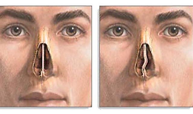 Признаки и симптомы искривления носовой перегородки
