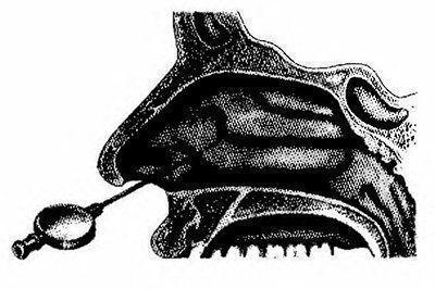 Болезни придаточных и околоносовых пазух носа