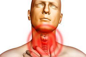 Чем лечить грибок в горле у взрослого – препараты и средства