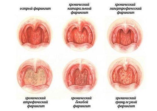 Что такое фаринголарингит - симптомы и лечение