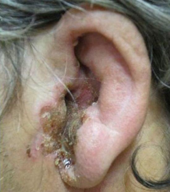 Болезни среднего уха - симптомы и лечение заболеваний