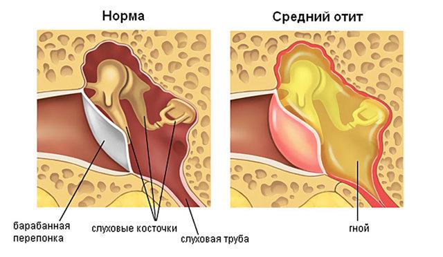 Острый средний отит - симптомы и лечение среднего уха у взрослых и детей