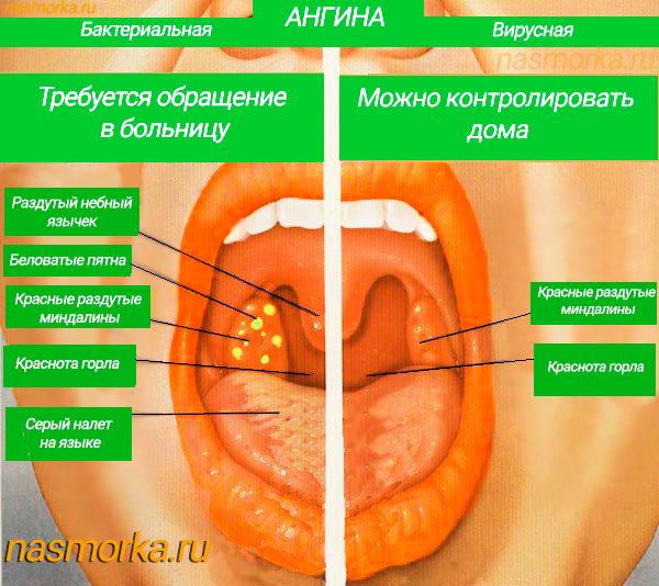 Насморк при ангине - может ли быть сопли и их причины