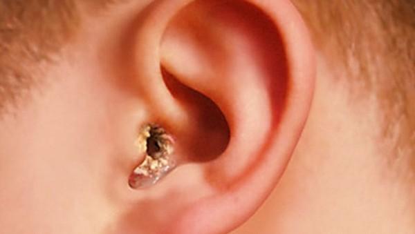 Грибок в ушах – причины отомикоза наружного уха у человека