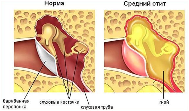 Боль за ухом слева и справа - причины возникновения