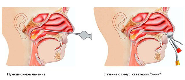Лечение гайморита - что делать, чтобы быстро избавиться от болезни