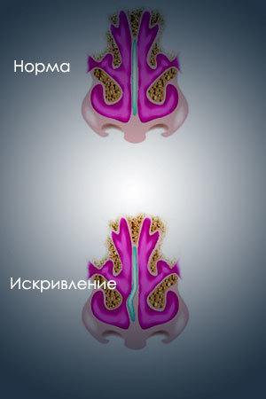 Операция по исправлению искривления носовой перегородки