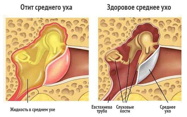 Вирусный буллезный отит - симптомы и лечение у детей и взрослых